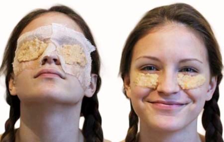 Маски из сырой картошки на глаза: марлю или положить под глаза