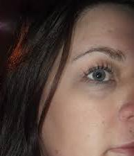 синева и круги под глазами фото