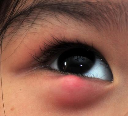 ячмень под глазом у ребенка