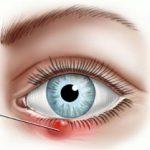 признаки ячменя под глазом