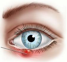 Ячмень под глазом: признаки, что делать, как убрать