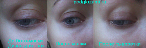 Результат бото-маски Дизао для глаз