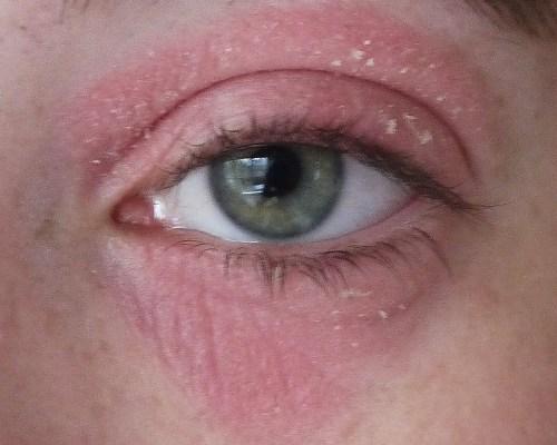 может быть аллергия на лук