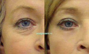 Женщина избавилась от морщин вокруг глаз в салоне красоты