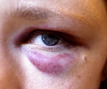 После удара глаз отек, опухоль, красное: лечение