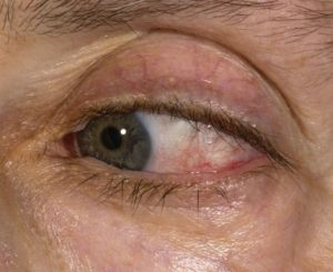 убрать красные сосуды под глазами
