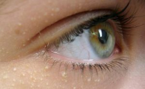 Жировик-милиум вокруг глаз - нередкое явление