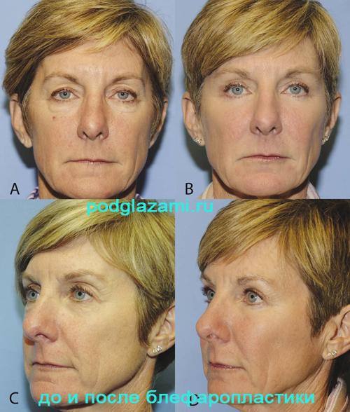 Операционное удаление грыжи под глазами: до и после