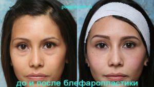 Жировые грыжи под глазами: до и после блефаропластики
