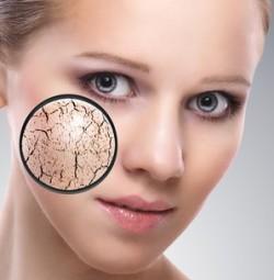 Как я избавилась от шелушения кожи под глазами