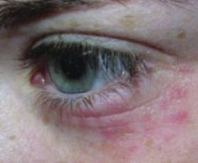 pokrasnenie-ot-allergii-pod-glazami-lichnyj-opyt-borby