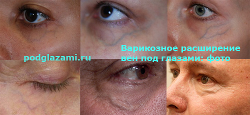 варикоз под глазами: фото