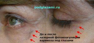 До и после лазерной фотокоагуляции варикозных вен под глазом