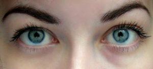 Один глаз с консилером, второй - без.