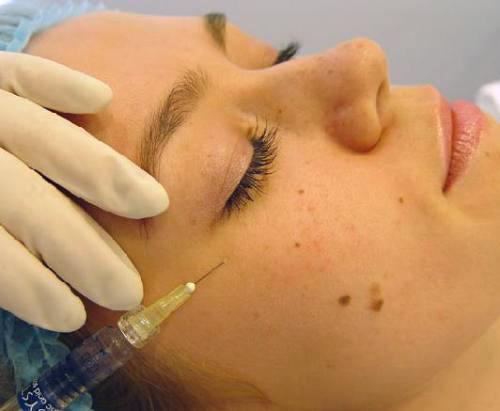 биоревитализация вокруг глаз и под глазами отзывы мешко отеки