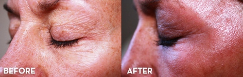 До и после курса химического пилинга вокруг глаз
