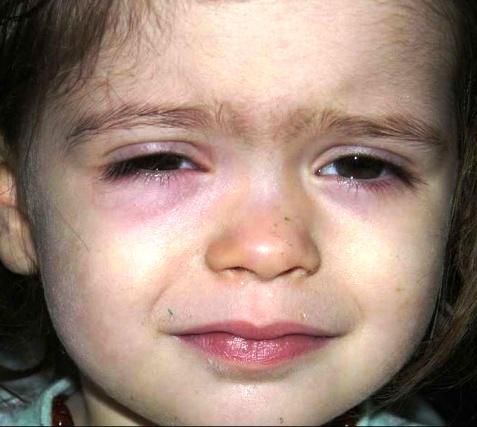 Часто темные пятна под глазами у ребенка возникают из-за усталости и недосыпа