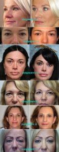 блефаропластика нижних век фото до и после