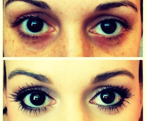 Тонкая кожа под глазами: что делать? Мой опыт
