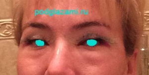 2й день после блефаропластики. Область глаз сильно отекла