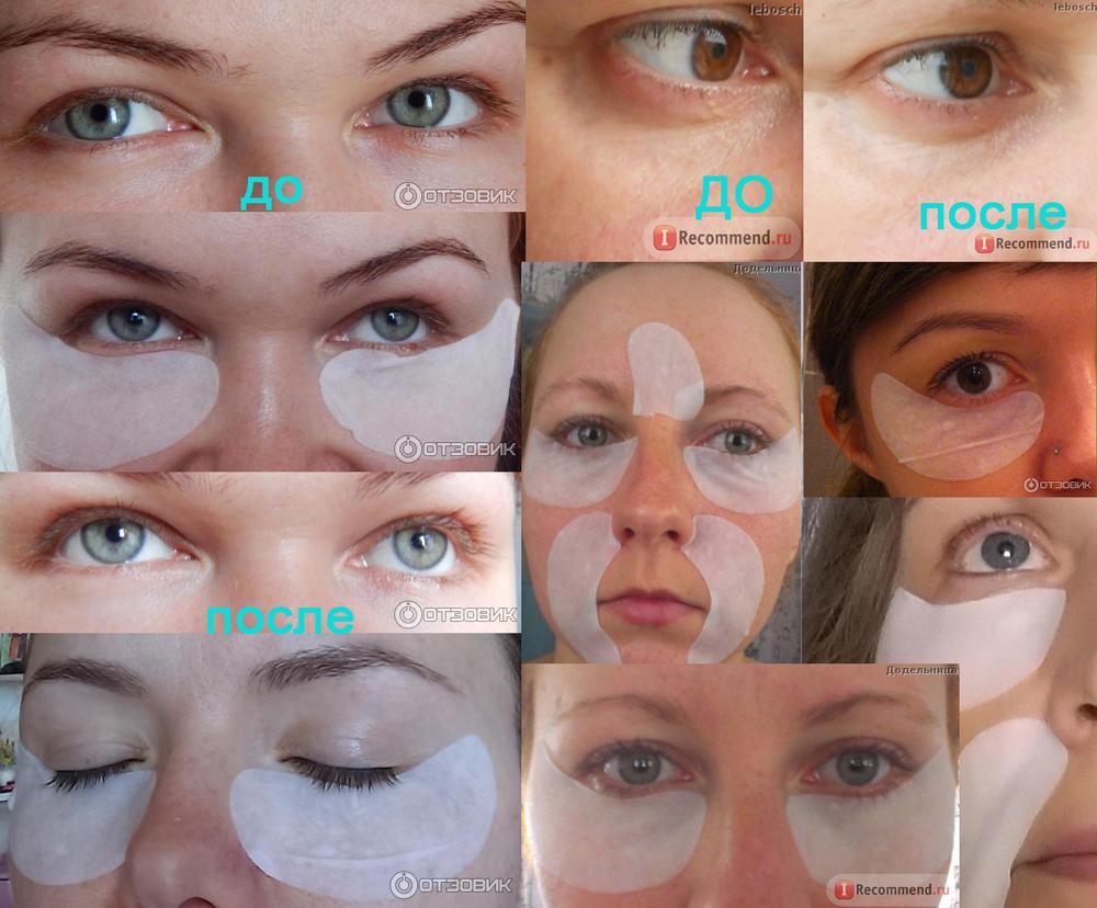 Skinlite: фото до и после