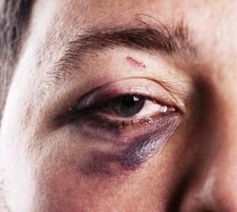 Отёк от удара под глазом: что делать, как убрать?