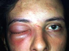 опухоль от удара под глазом
