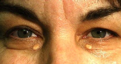 Жировик во внешнем углу глаза thumbnail