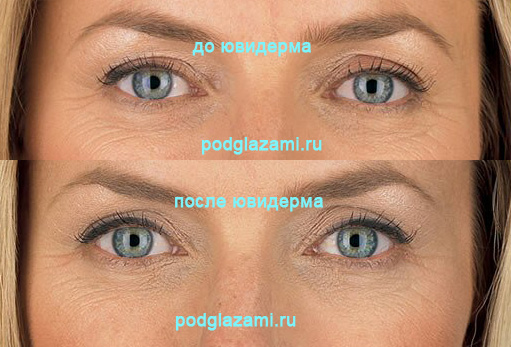 Фото до и после филлеров под глаза (препарат Ювидерм)