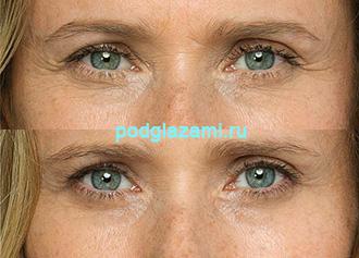 До и после филлеров под глаза (использован препарат Белотеро)
