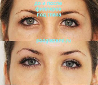 Фото до и после филлеров под глаза