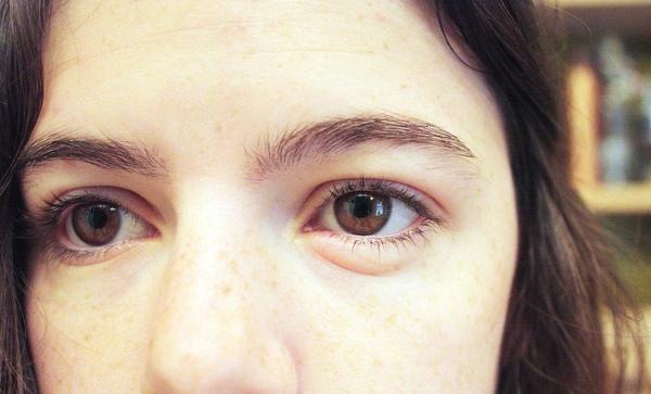 глаз отек из за аллергии