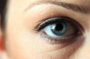 отекший глаз