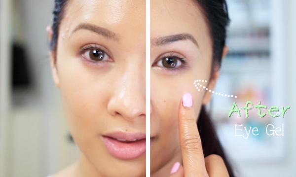 до и после использования домашнего геля под глаза