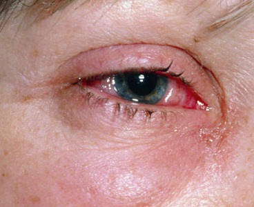 опухший глаз от аллергии