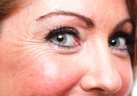 гусиные лапки под глазами