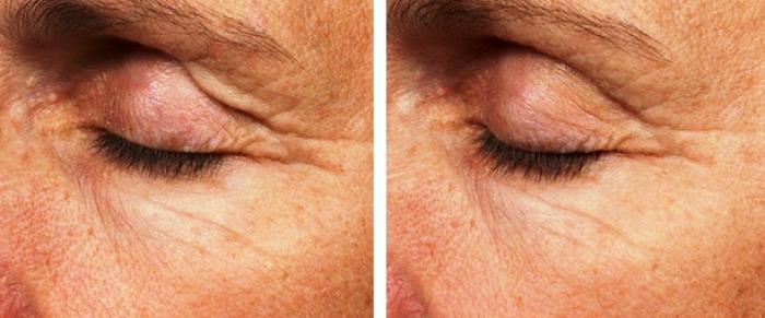 отзывы термаж вокруг глаз фото до и после