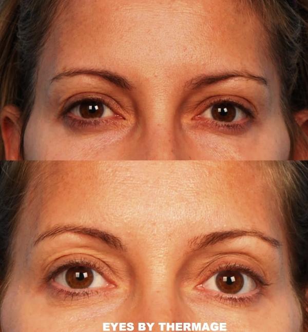 результат термажа вокруг глаз фото до и после