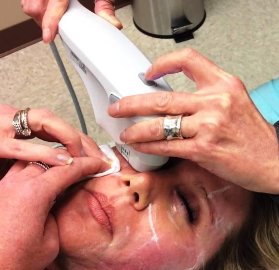 Процедура термажа кожи вокруг глаз