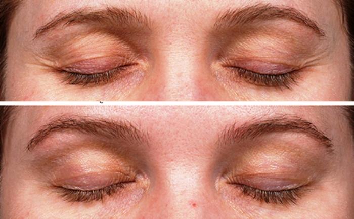 Термаж под глазами: до и после
