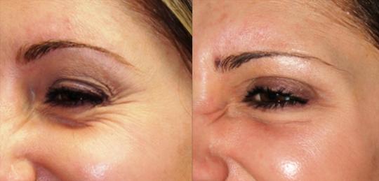 как убрать морщины вокруг глаз косметология