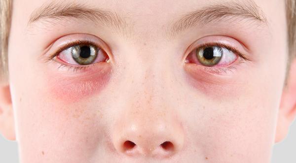 психосоматика аллергия на лице у взрослых
