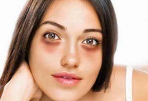 синяки под глазами причины