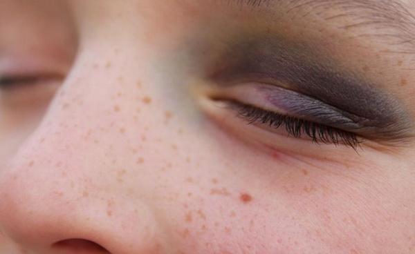 гепариновая мазь от удара под глазом