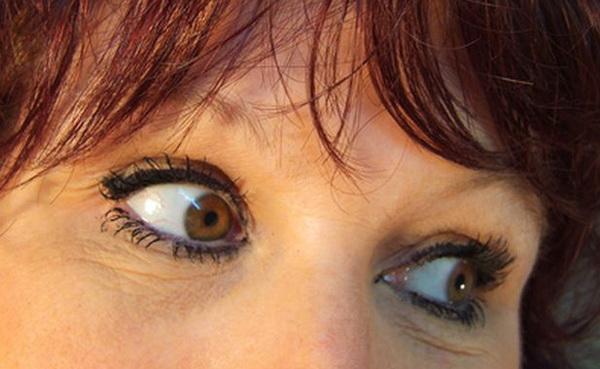 как убрать морщинки вокруг глаз