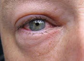 отекают глаза после ботокса