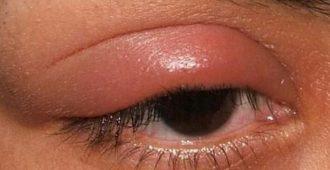 укусила мошка в глаз