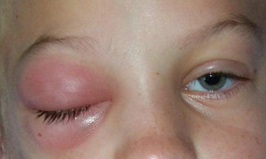 ребенка укусила мошка в глаз