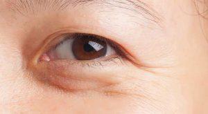 как выбрать крем вокруг глаз от отеков
