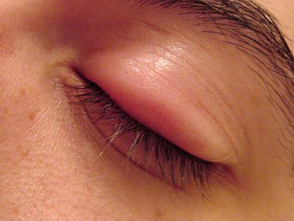 опухло верхнее веко глаза и болит